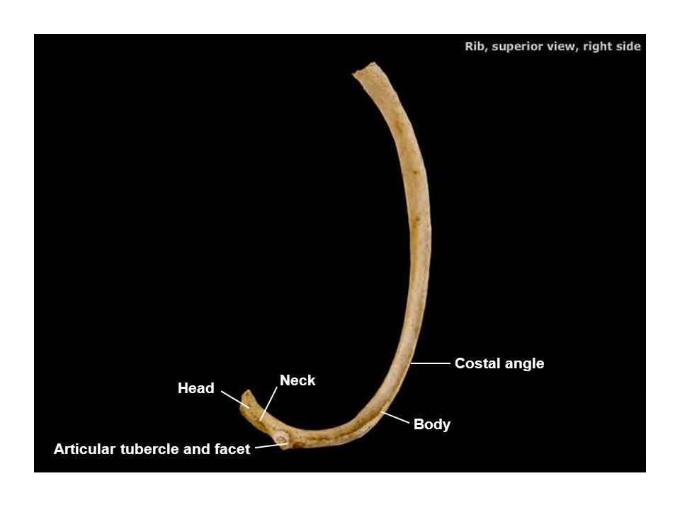 Costal angle Neck Head Body Articular tubercle and facet
