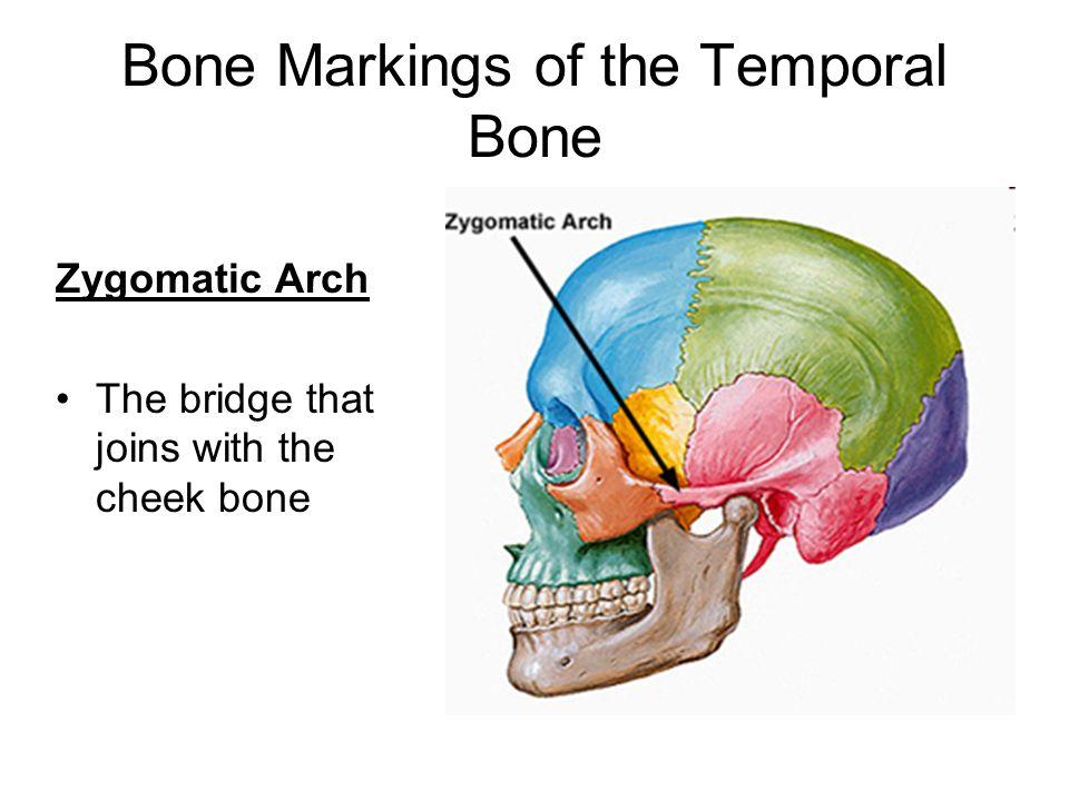 Wunderbar Cheek Bones Anatomy Zeitgenössisch - Menschliche Anatomie ...