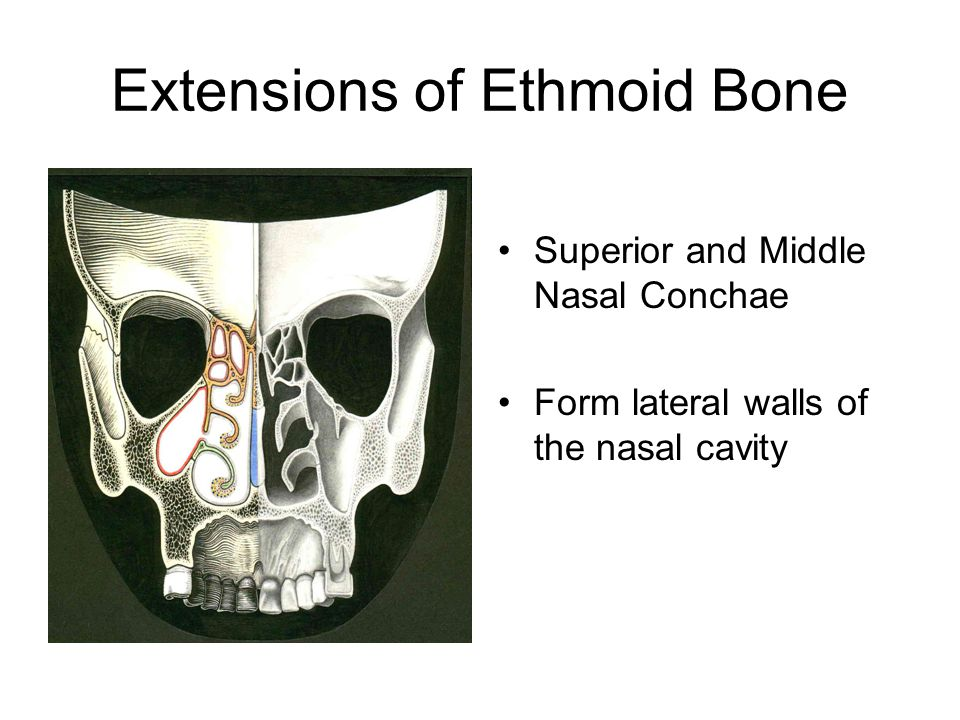 Extensions of Ethmoid Bone