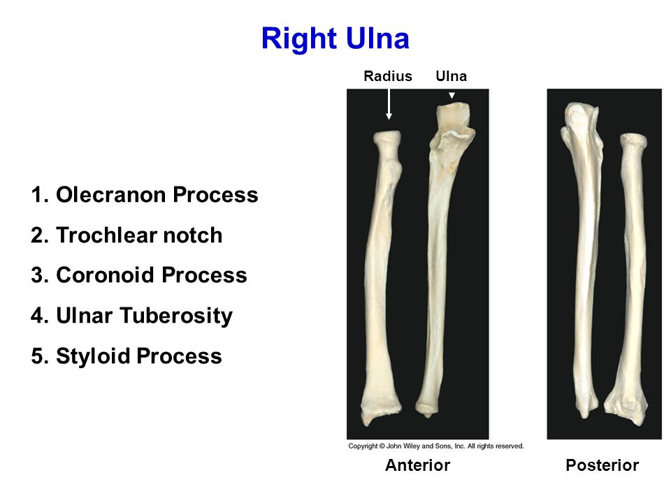 Appendicular Skeleton: Bones of The Upper Limb - ppt video ...