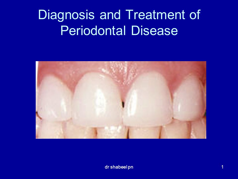 Diagnosis And Treatment Of Periodontal Disease Ppt Video Online
