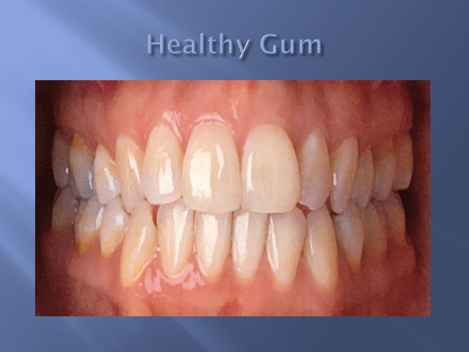 how to get healthy pink gums