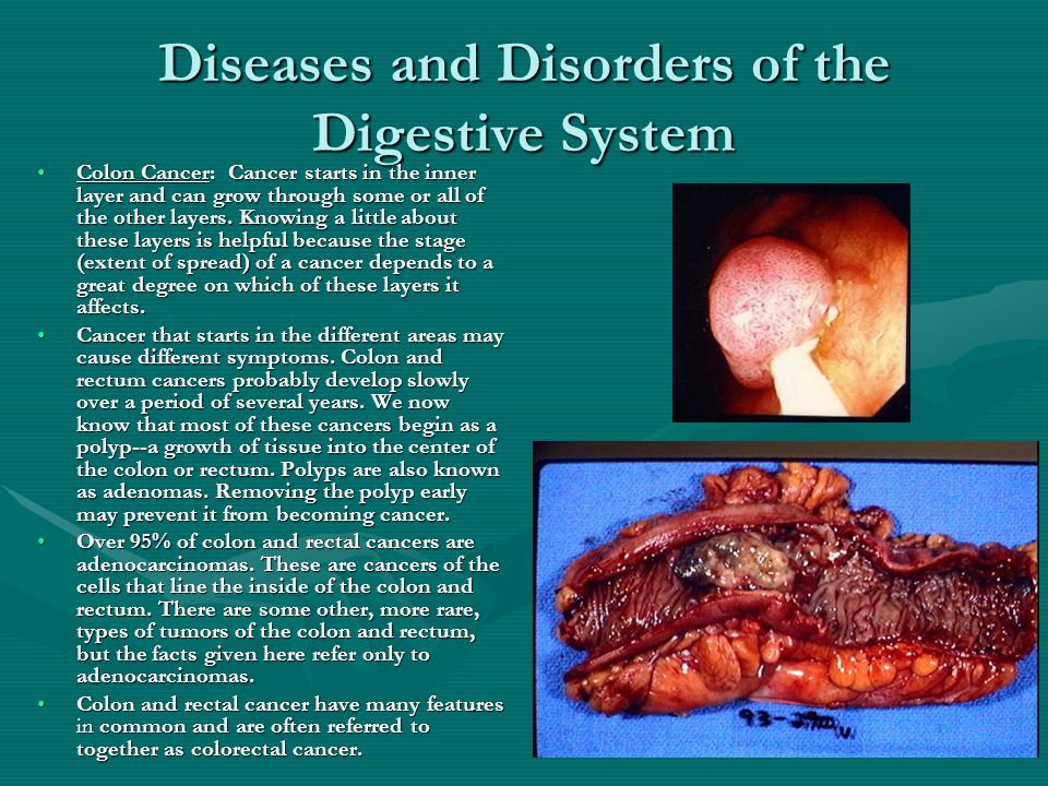Digestive System Disorders And Diseases Ppt
