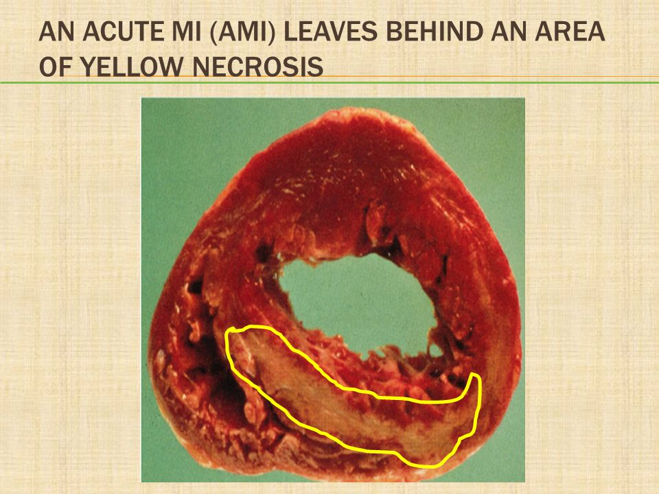 An Acute MI (AMI) Leaves Behind an Area of Yellow Necrosis