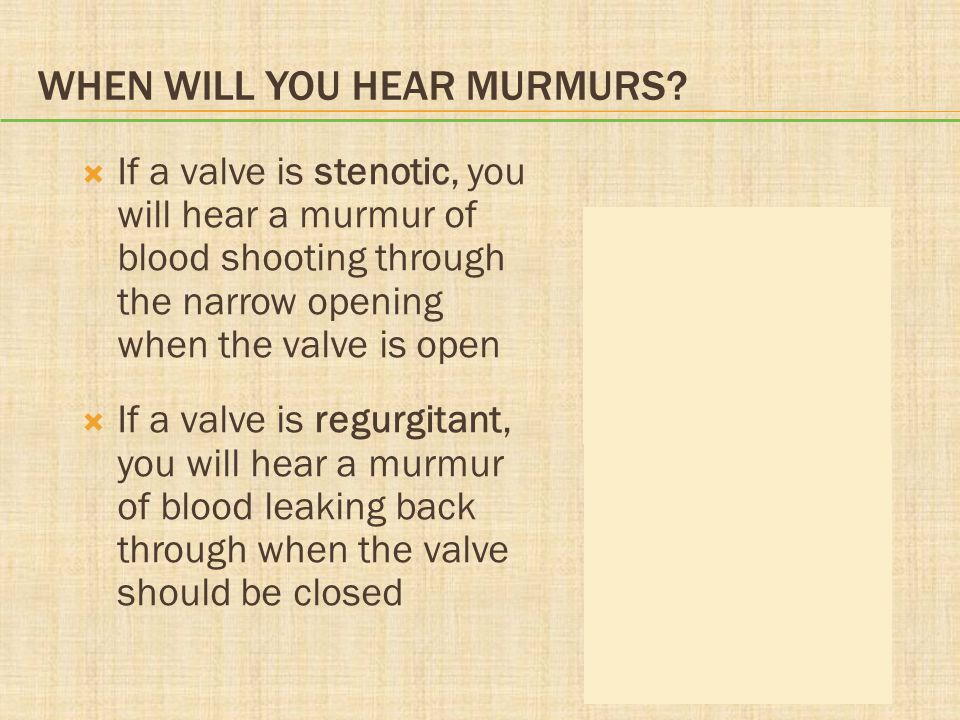 When Will You Hear Murmurs