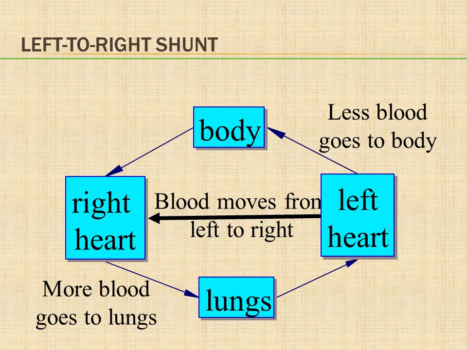 body left right heart heart lungs Less blood goes to body