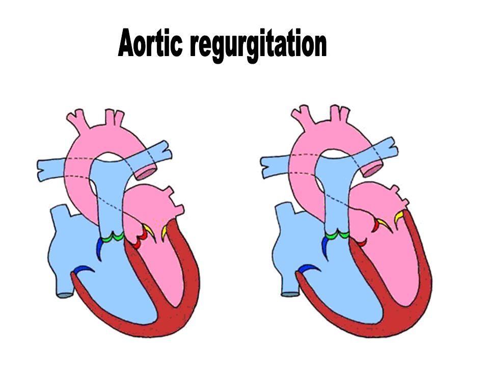 Aortic regurgitation Dr Husain Tayib. - ppt download  Aortic