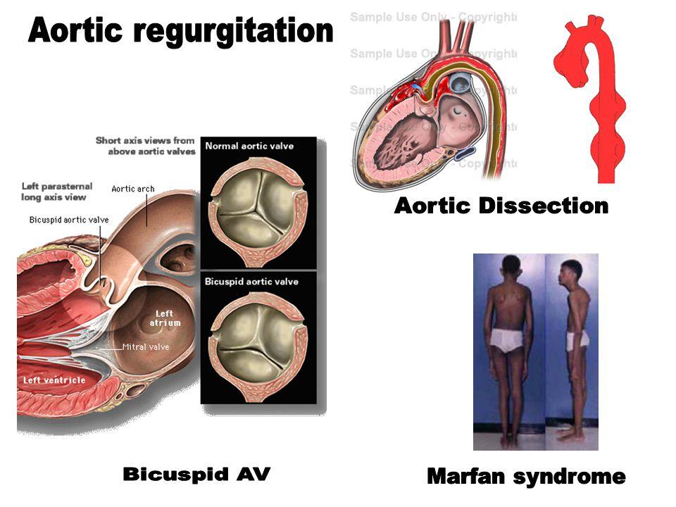 Aortic regurgitation Dr Husain Tayib. - ppt download | 960 x 720 jpeg 91kB