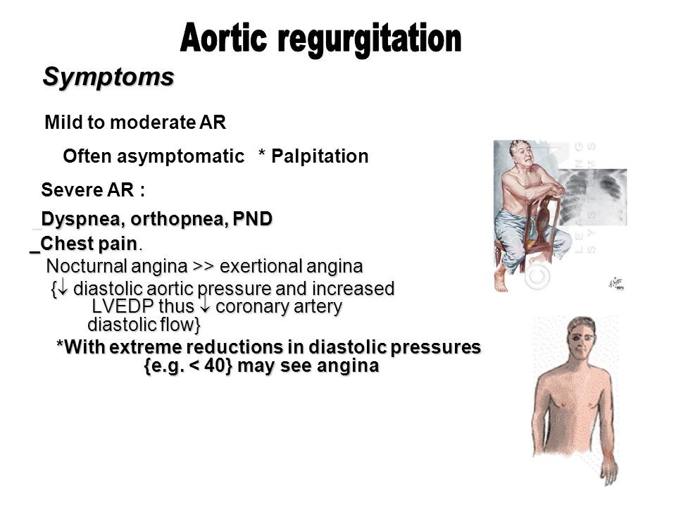 Aortic Regurgitation Dr Husain Tayib  Ppt Download. Monument Signs Of Stroke. Chinese New Year Signs Of Stroke. Amenity Signs. Ohio Signs Of Stroke. Lead Signs Of Stroke. Danger Signs Of Stroke. Special Signs. Guest Bedroom Signs