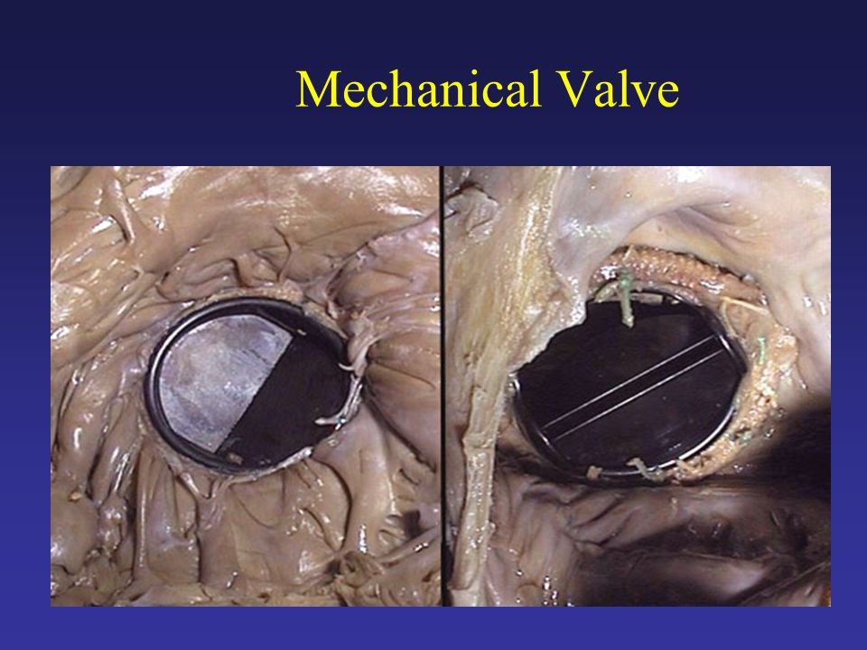 the mechanical hearth valve essay Types of artificial heart valves tissue all artificial heart valves used for replacement have disadvantages if a tissue valve is used (usually made from cow or pig tissue) it will wear out over time.