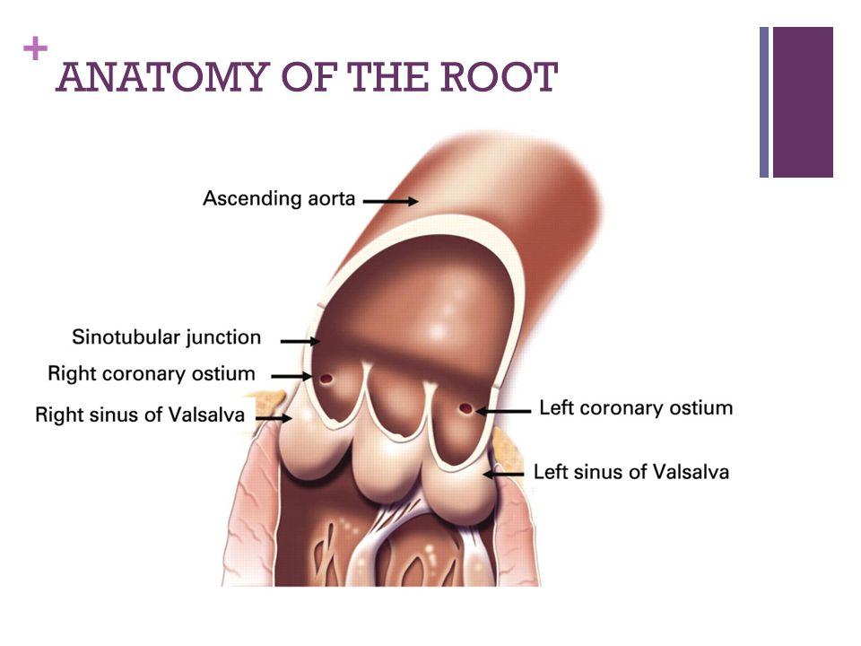 Coronary ostium anatomy