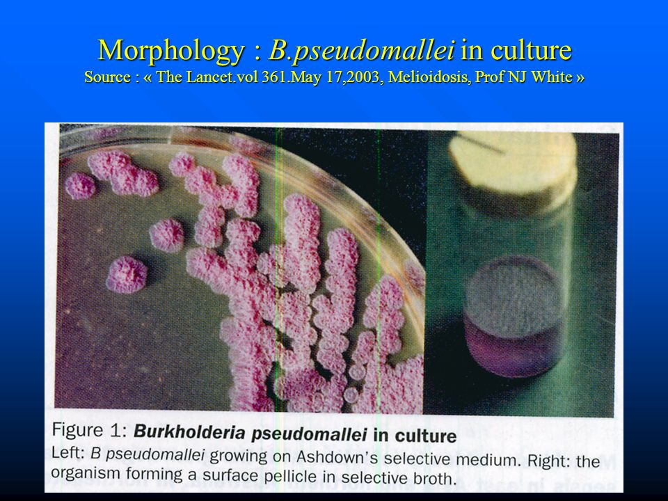 Morphology : B. pseudomallei in culture Source : « The Lancet. vol 361