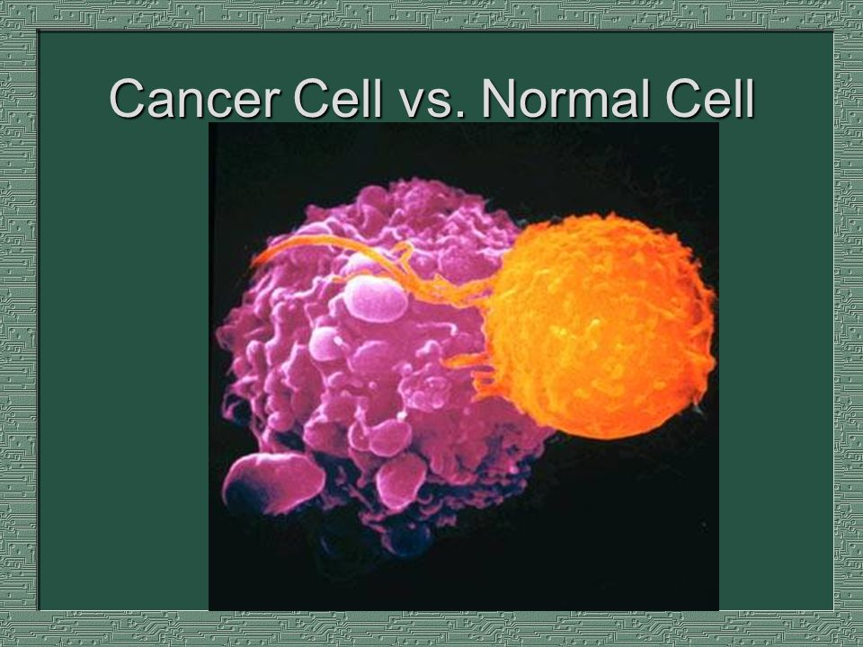 cancer cells vs normal cells This segment depicts cell growth, with the first segment displaying normal cells, the second segment (1:20) displaying cancer cells and the third segment (2:38) showing both normal and cancer cells differences in ruffling (changes in the cell membrane) and movement are emphasizedthis video has no audio.
