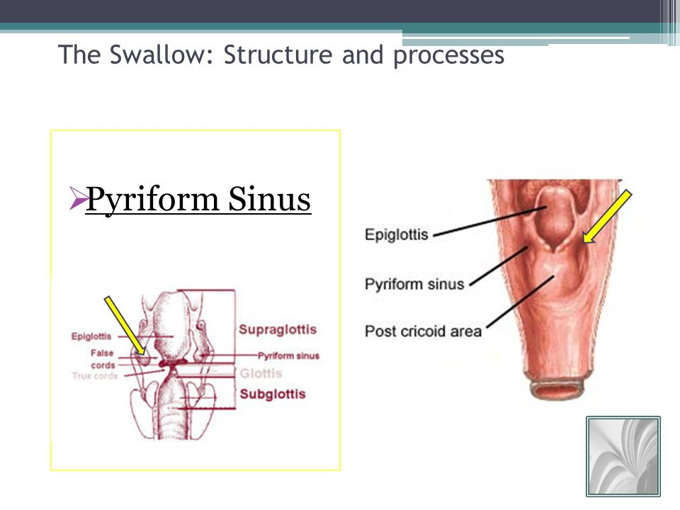Dysphagia: Terminology, structure, and process of the normal swallow ...