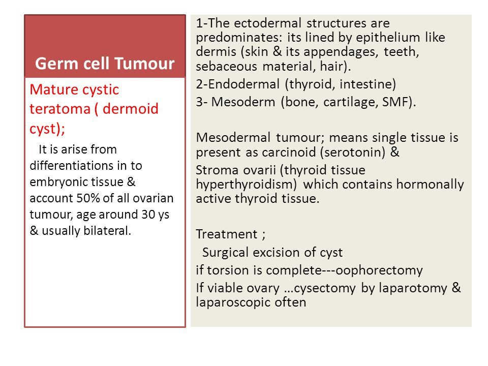 Germ cell Tumour Mature cystic teratoma ( dermoid cyst);