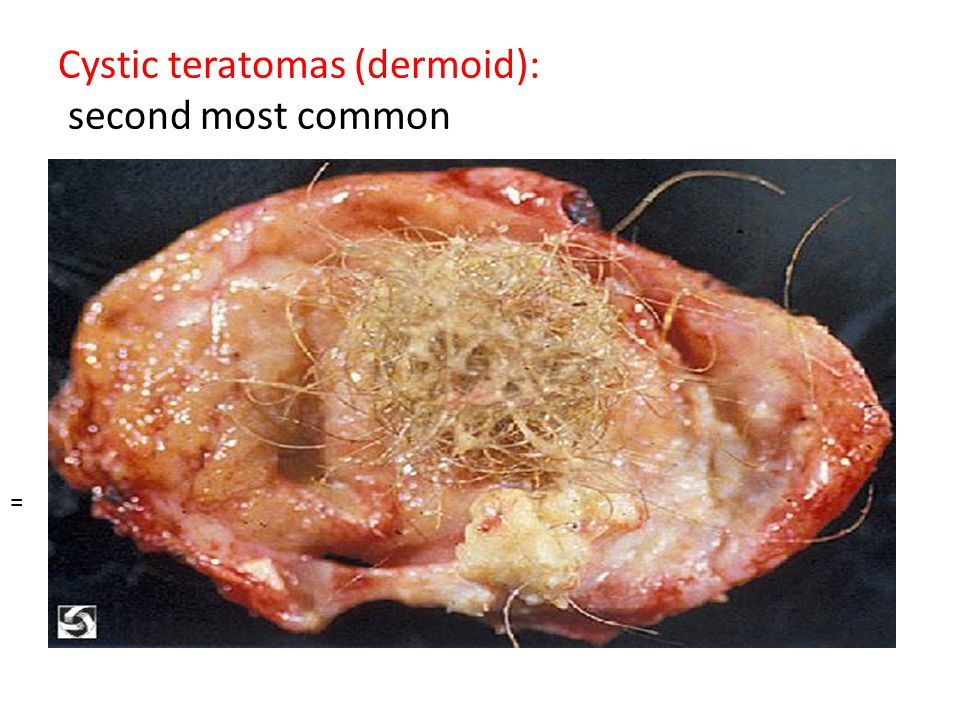 Cystic teratomas (dermoid): second most common