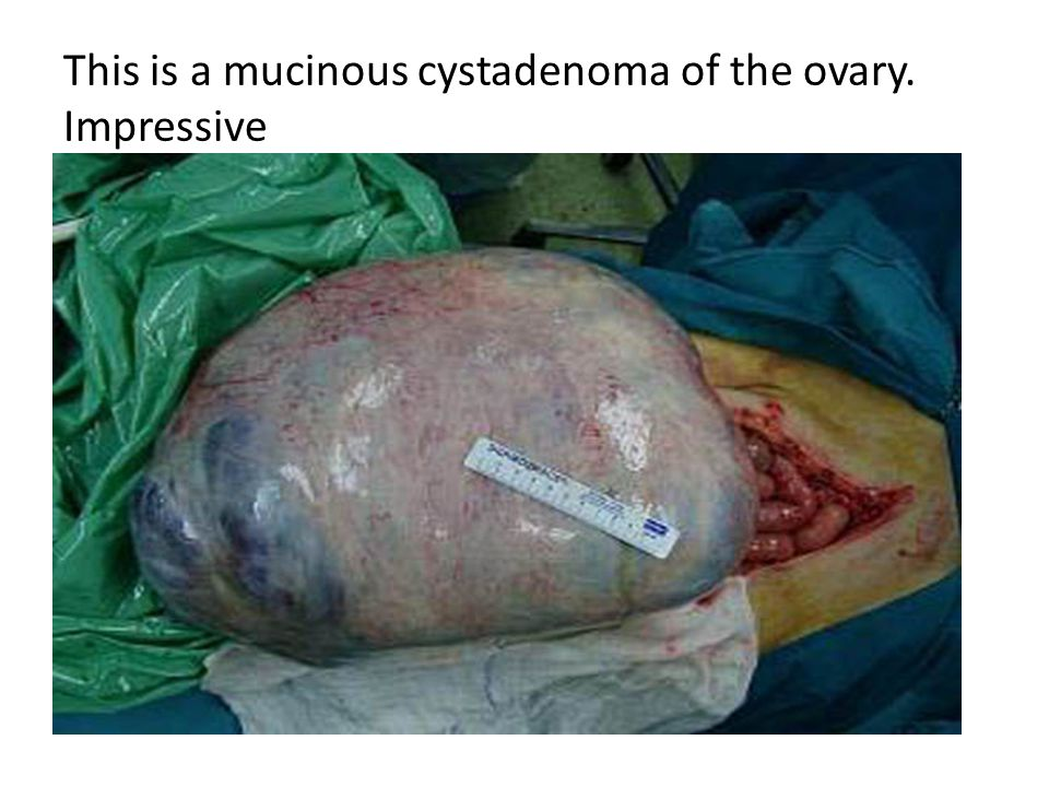 This is a mucinous cystadenoma of the ovary. Impressive