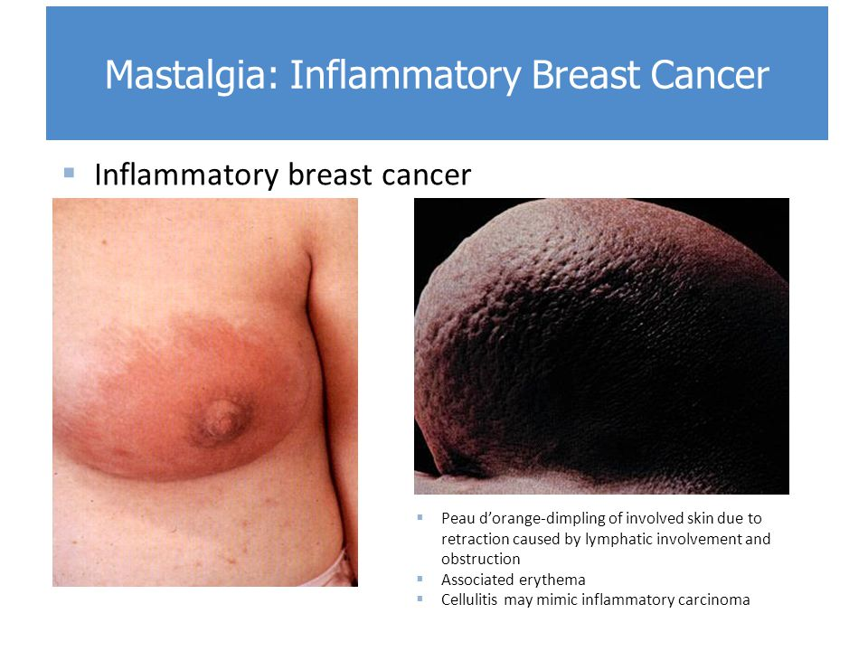 BREAST AND AXILLA EXAMINATION. - ppt video online download
