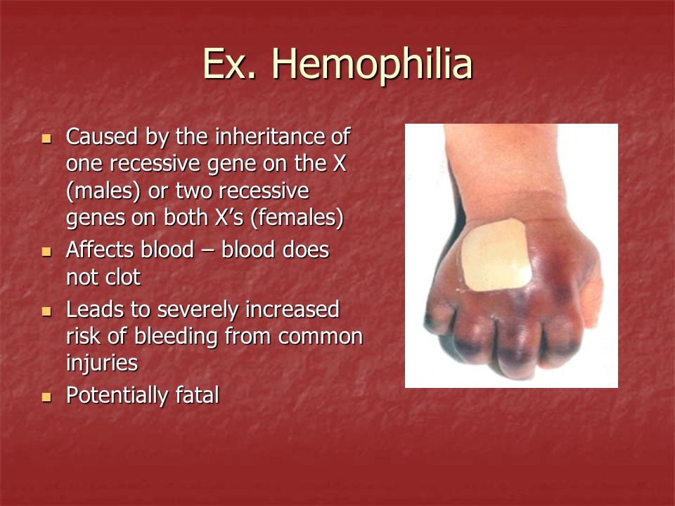 Ex. Hemophilia Caused by the inheritance of one recessive gene on the X (males) or two recessive genes on both X's (females)