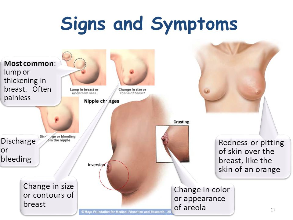 breast disorders symptoms color changes