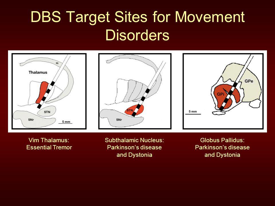 Deep Brain Stimulation Ppt Video Online Download