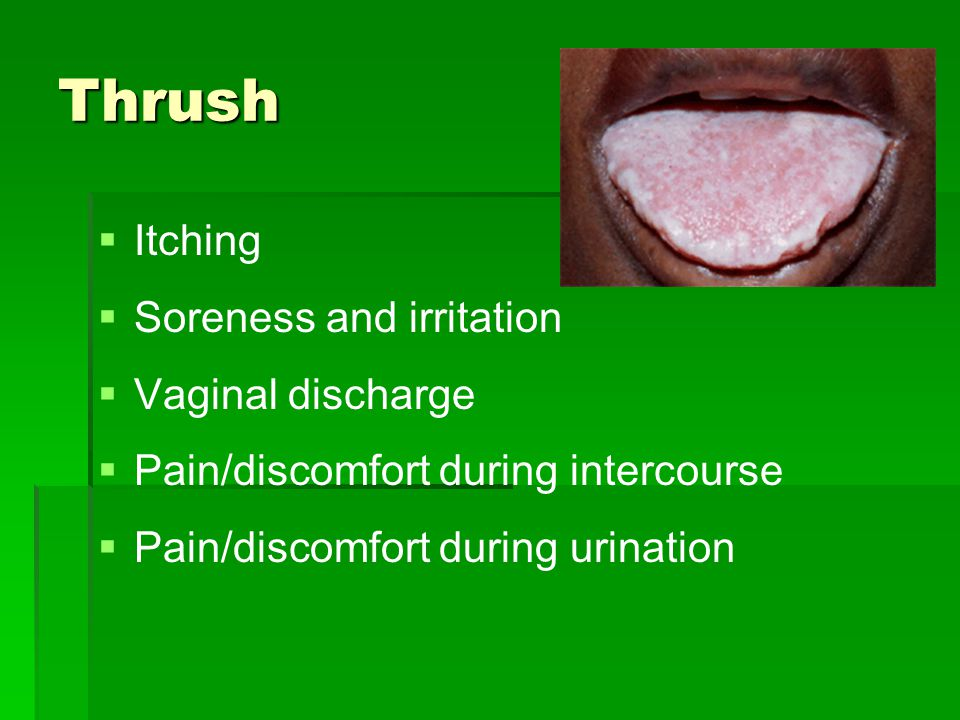 Thrush Itching Soreness and irritation Vaginal discharge