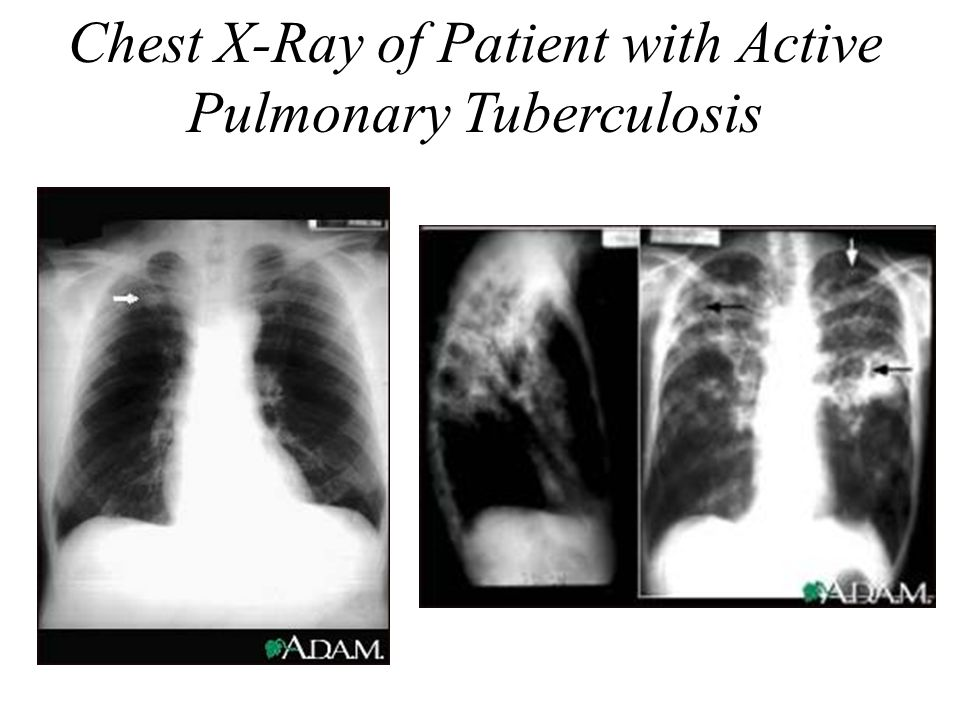 Chest X-Ray of Patient with Active Pulmonary Tuberculosis