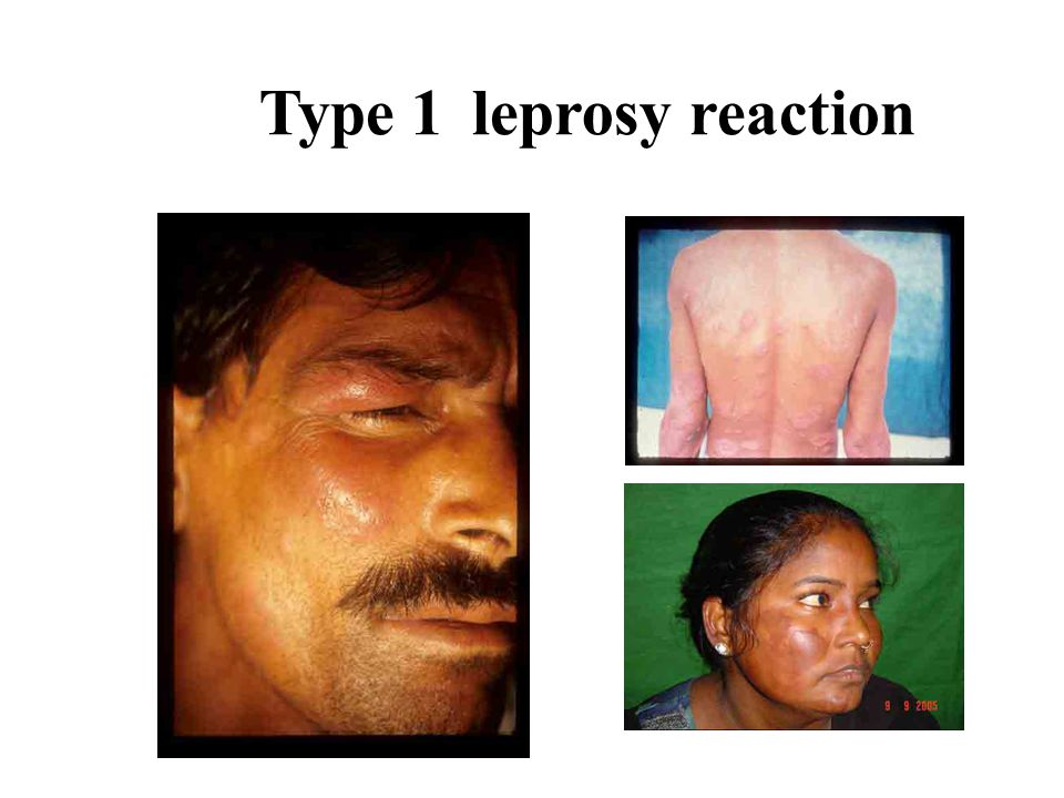 Type 1 leprosy reaction