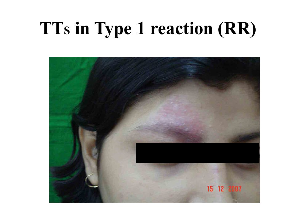 TTS in Type 1 reaction (RR)