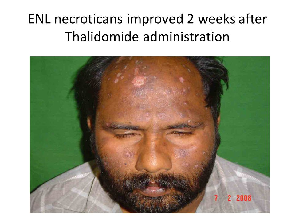 ENL necroticans improved 2 weeks after Thalidomide administration