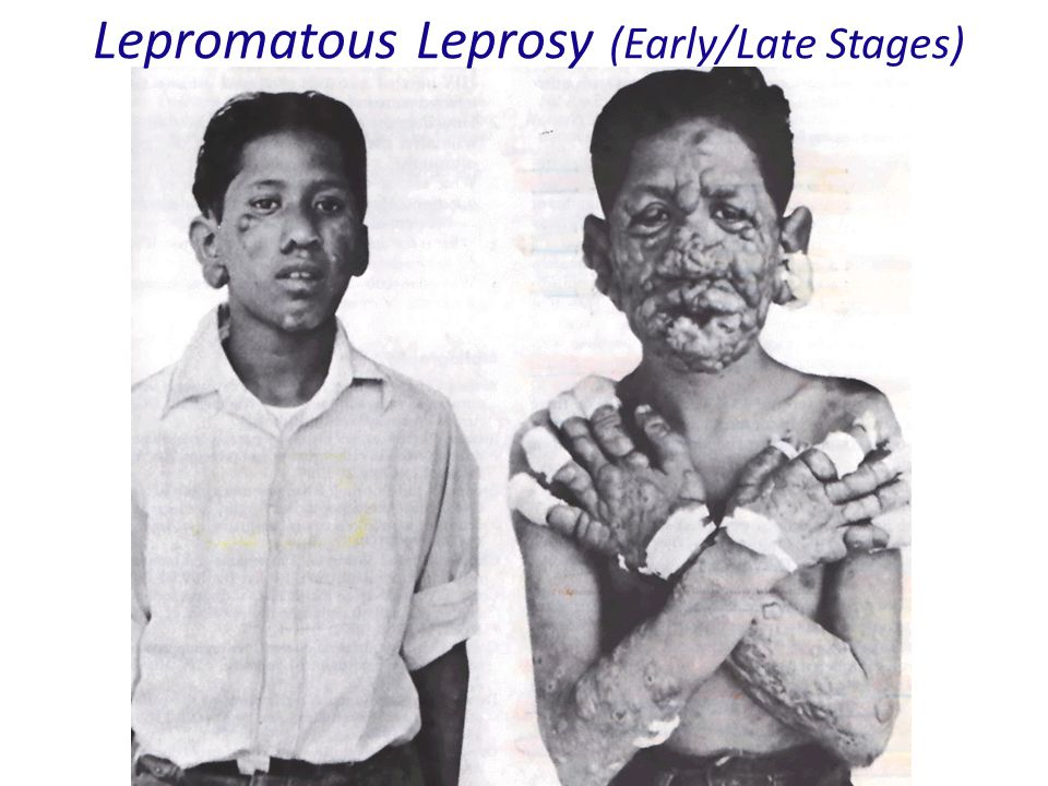 Lepromatous Leprosy (Early/Late Stages)