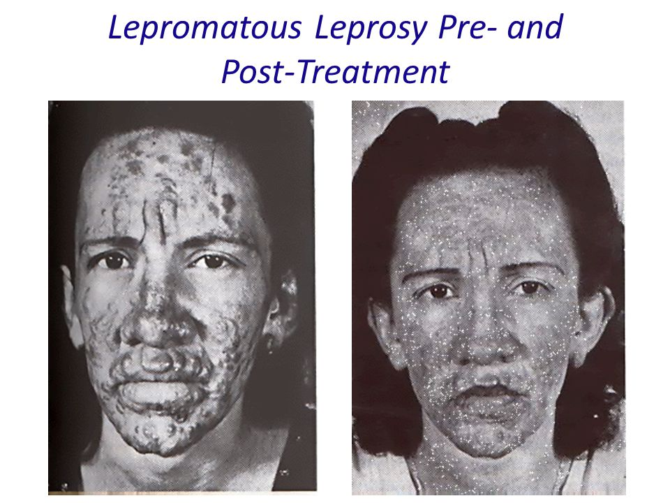 Lepromatous Leprosy Pre- and Post-Treatment