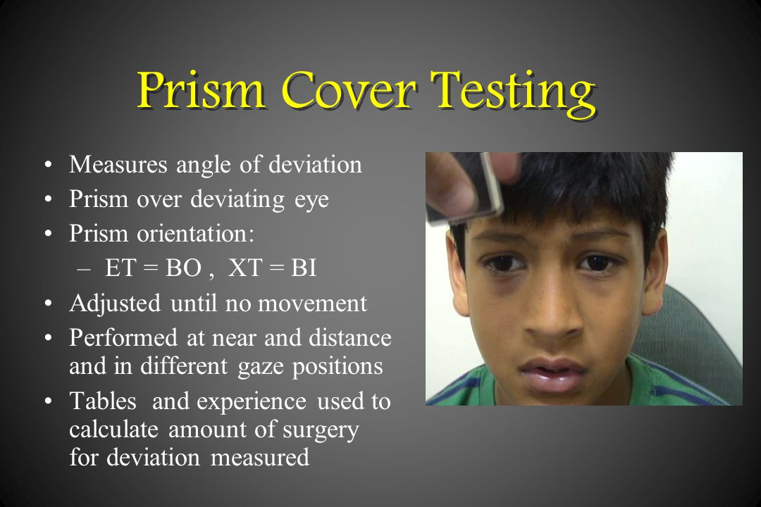 Paediatric Ophthalmology and Strabismus - ppt video online ...