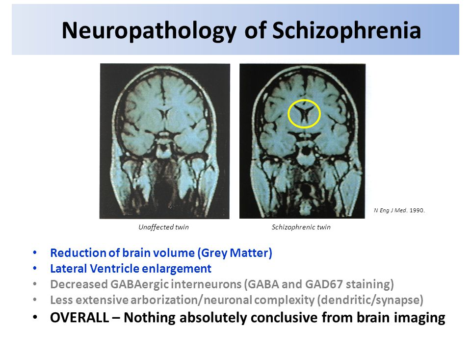 is it really there schizophrenia essay Free essays from bartleby | there are certain disorders that are linked to different  types of  schizophrenia is not just about split personalities, mental disorders,.