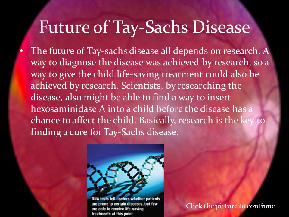an introduction to the issue of the disease tay sachs Leading the cause to treat and cure tay-sachs and other allied diseases research guide for families details an introduction to research.