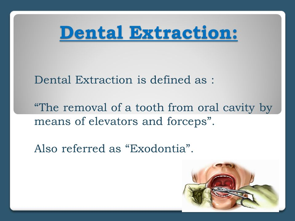 Dental Extraction: Dental Extraction is defined as :