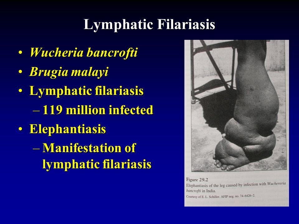 Lymphatic filariasis scrotum