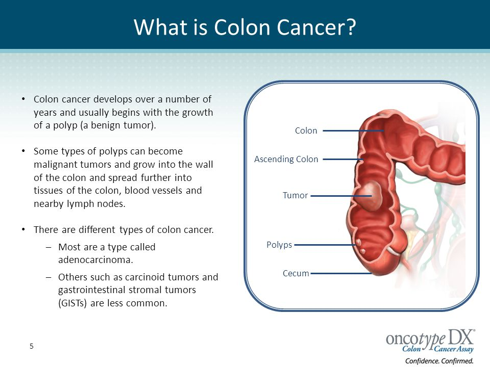 Colon Cancer Specialist Austin Tx