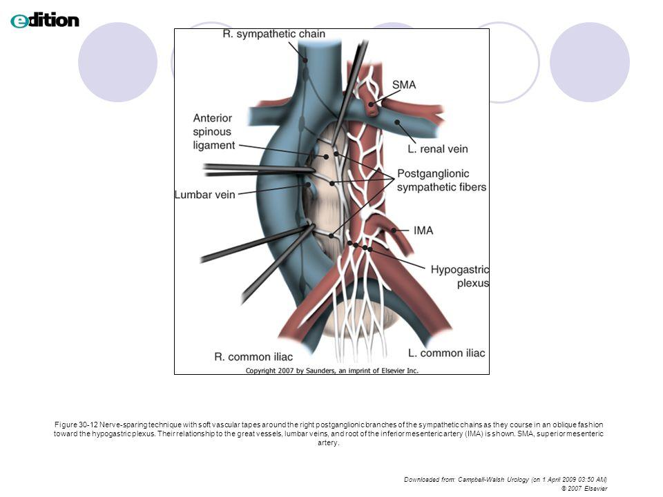 Excelente Iliac Chain Festooning - Imágenes de Anatomía Humana ...