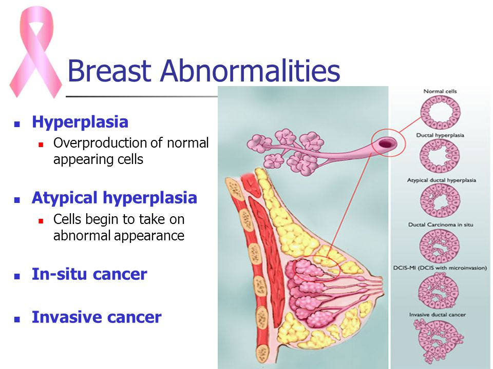 Breast cancer lab abnormalities
