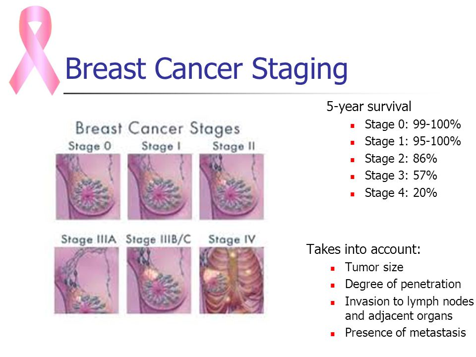 Stage 4 Triple Negative Breast Cancer