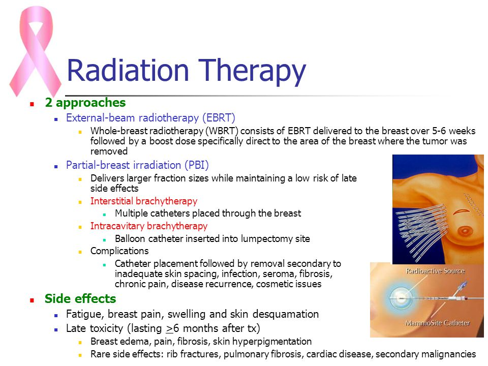 cancer and radiation Do you know how much radiation you are exposed to learn more about the risk of developing cancer from various sources of radiation.