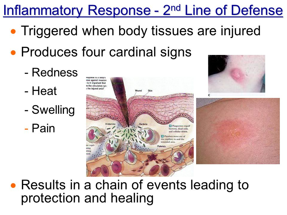 Inflammatory Response - 2nd Line of Defense