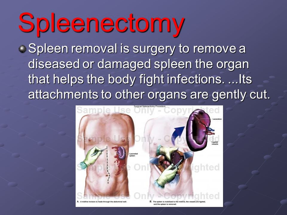 Spleenectomy