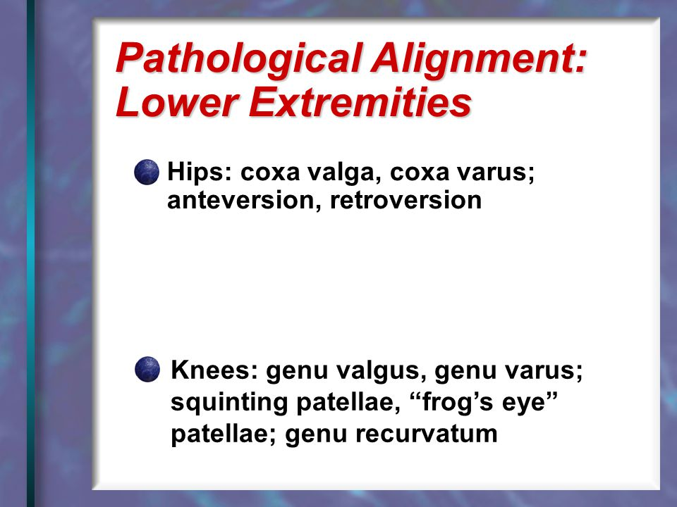 Pathological Alignment: Lower Extremities