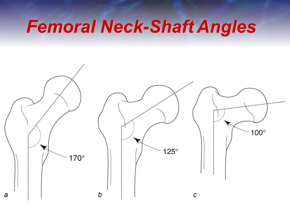 Femoral Neck-Shaft Angles