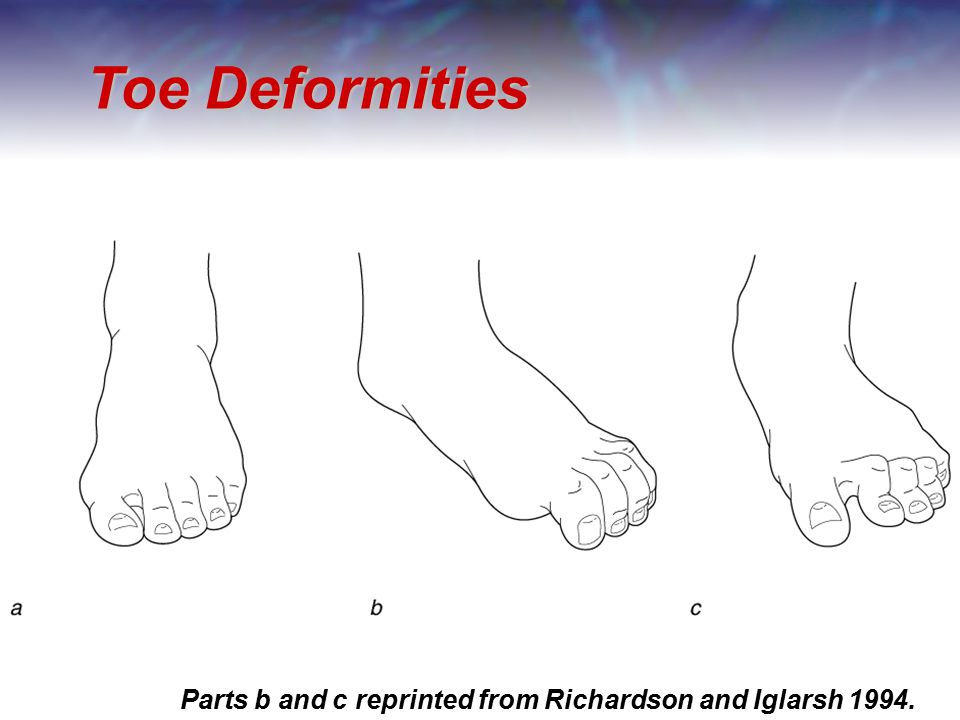 Toe Deformities Parts b and c reprinted from Richardson and Iglarsh 1994.