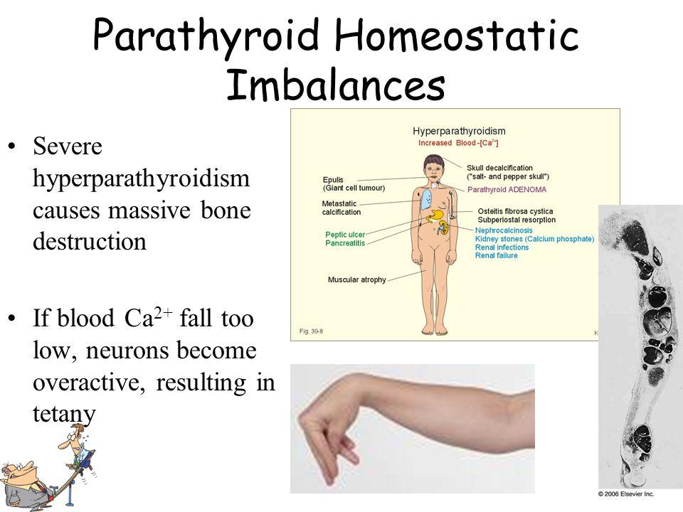 Parathyroid Homeostatic Imbalances