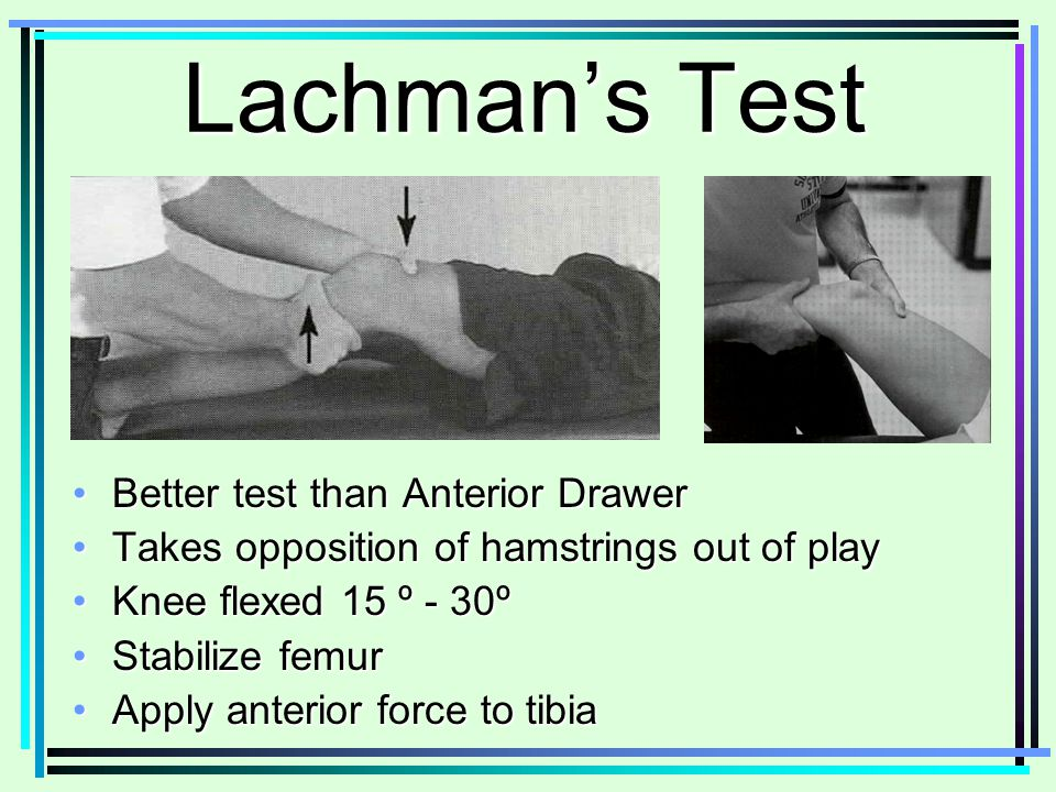 Anterior Drawer Test For Knee Anterior Drawer