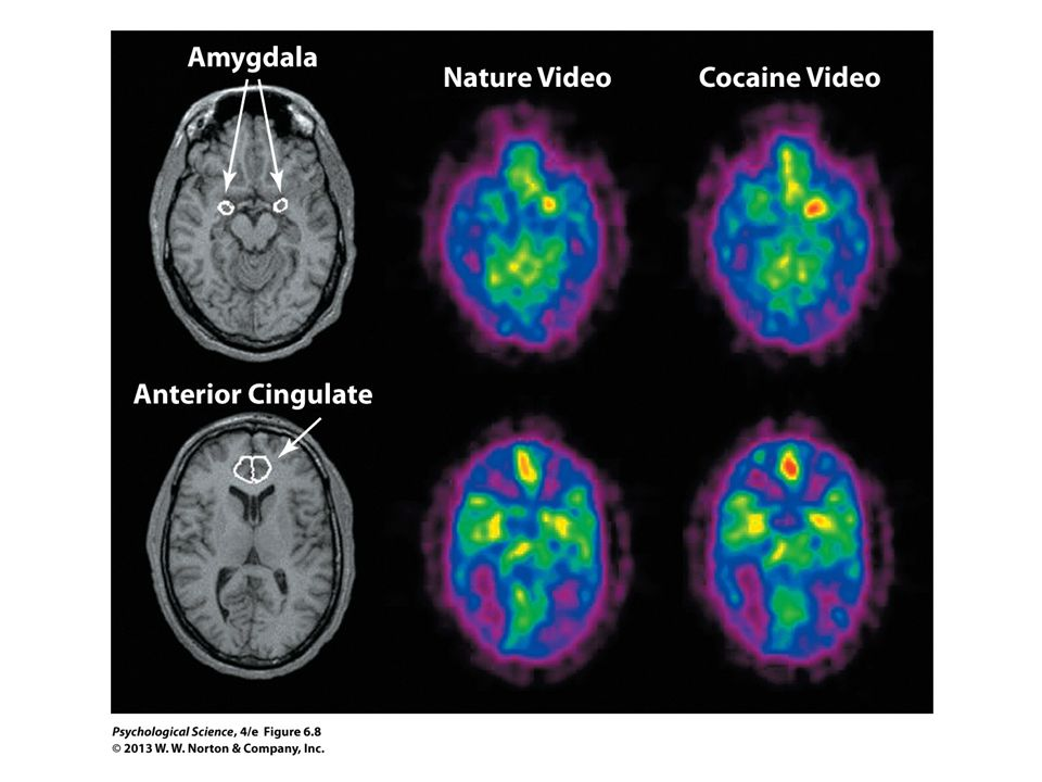 FIGURE 6.8 PET Scans Showing Activation of Limbic System Structures